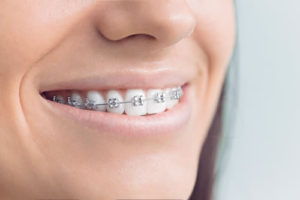 Types Of Braces Daub Ortho Germantown Wi Orthodontist